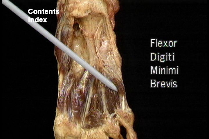 flexor digiti minimi brevis - photo #30